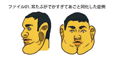 耳たぶの顎化